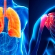 Mayo Clinic Pulmonary Manifestations of Connective Tissue Disorders 2021